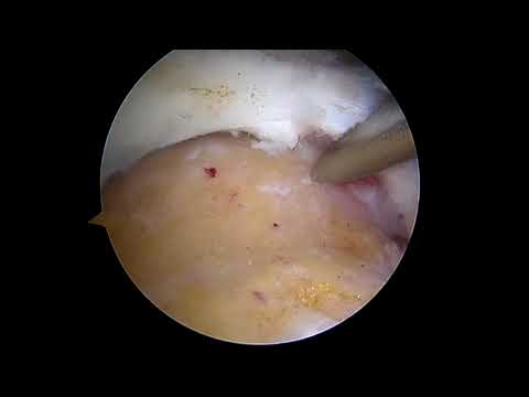Arthroscopic Massive RCR with Subscap Repair