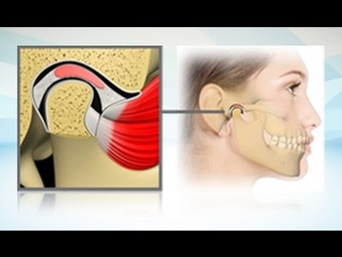 Übung mit Schmerzen in der Rückseite des Kopfes und des Halses
