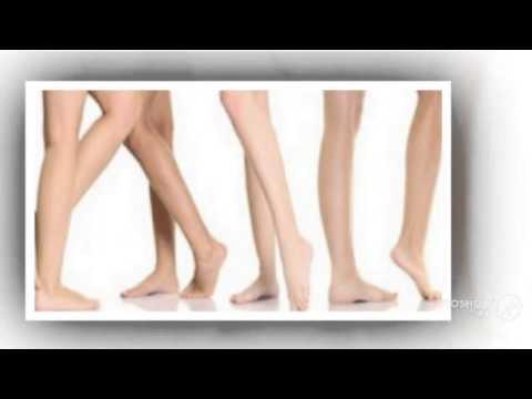 Чем лечить косточки на большом пальце ноги