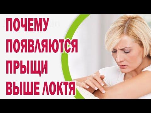 Отбеливающие кремы для лица ахромин