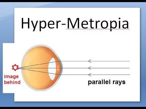 Alacsony myopia kezelés