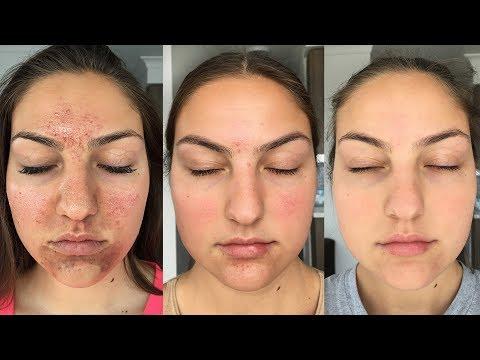 Ošetření stárnoucí pokožky proti vráskám