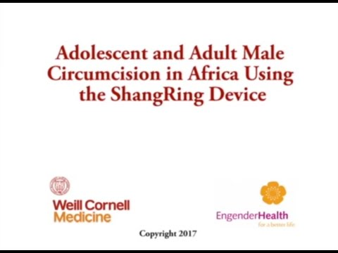 A step-by-step No-Flip ShangRing Male Circumcision Surgical Training in Africa (2017)