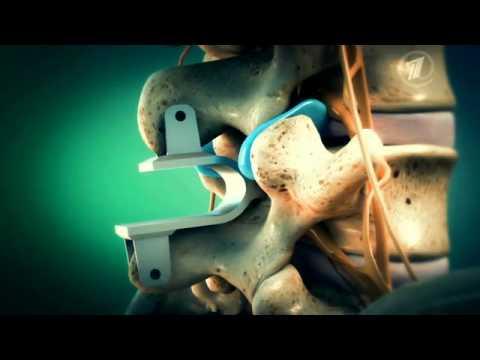 Артрит артроз челюстно лицевой сустав