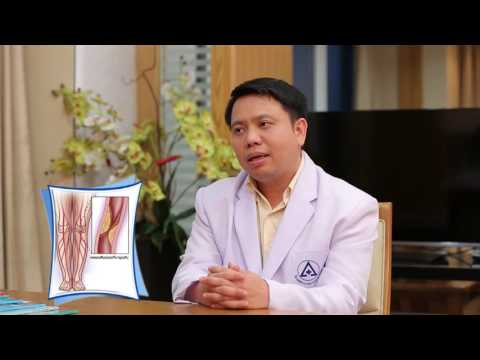 Thrombophlebitis หลอดเลือดดำลึกของที่ต่ำกว่าผลกระทบที่แขนขา