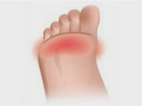 Video How to relieve pain in the balls of your feet