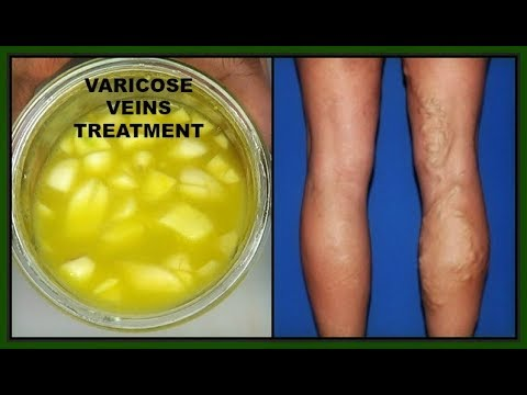 Prove a un varicosity di vene