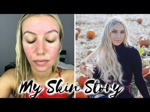 Face mask sa halip ng Botox review