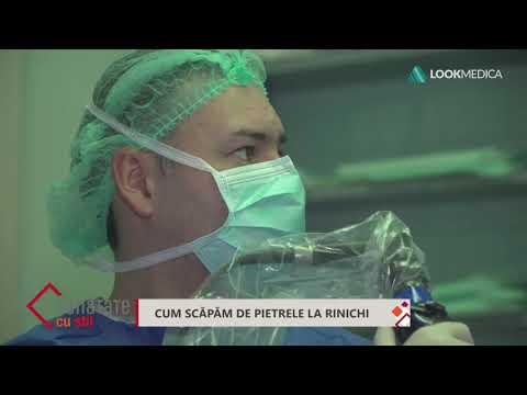 Hpv nielussa oireet