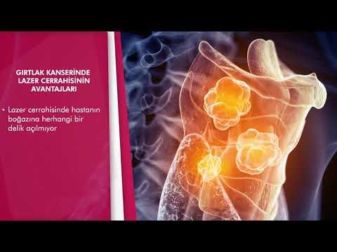 Gırtlak kanserinde lazer tedavisi nasıl uygulanıyor?