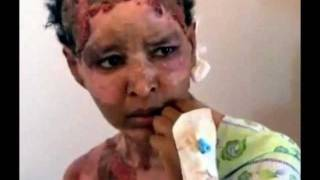 Shweyga Mulla (Shewaye Molla) Brutally Burnt With Boiled Water By Gadhafi Family.wmv