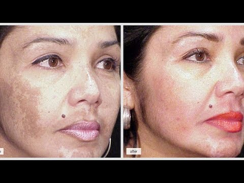 Neoton Cream ng age spots sa mukha sa pharmacy