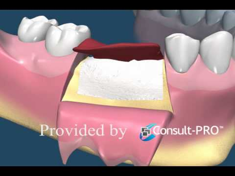 Socket Augmentation