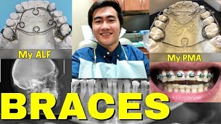 BRACES + Palatal Expanders - Things you need to know Before getting them (ALF + PMA/FAGGA) | TMJ