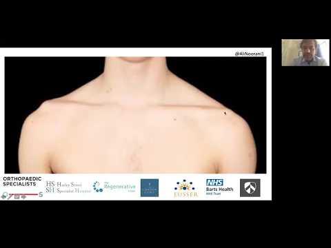 Ce să faci dureri la nivelul articulațiilor șoldului