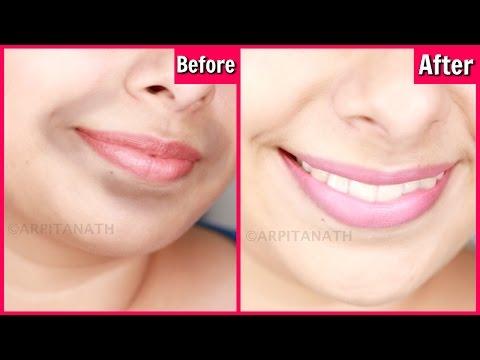 Schutz- der Gesichtscreme von der Pigmentation