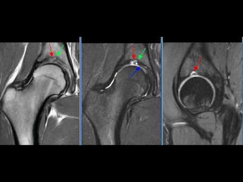 Articolazioni dolore e la nevralgia