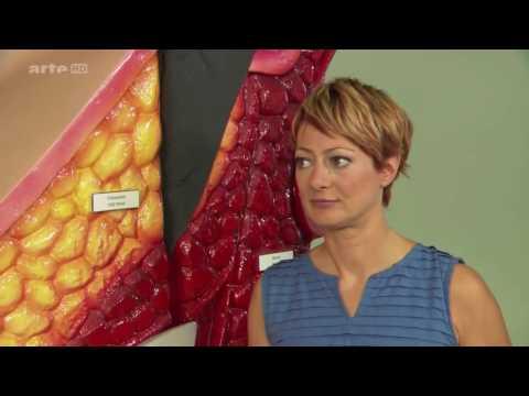 Ob die Osteochondrose im Brustkorb drücken kann
