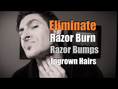 Video How To Eliminate Razor Burn, Bumps and Ingrown Hairs | Razor Burn Prevention