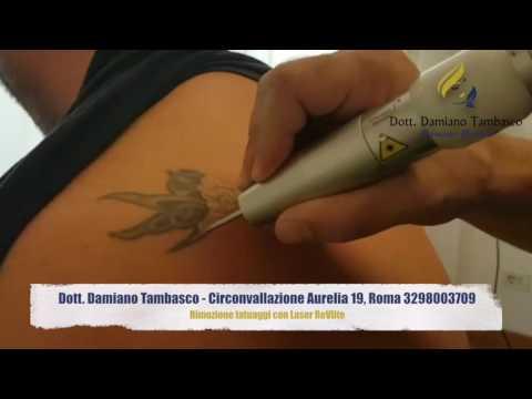 Trattamento di garofano varicosity