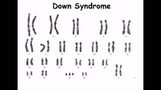 8  Karyotype