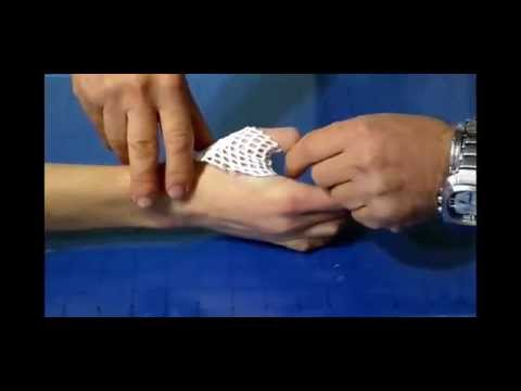Cisti con osteoartrite del ginocchio