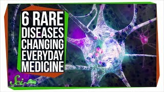 How 6 Rare Diseases Are Changing Everyday Medicine - Video Youtube