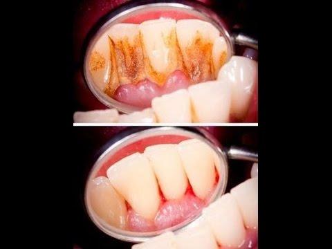 Pinworms diagnózis