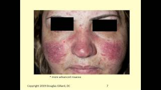 Dermatology: Rosacea and Keratosis Pilaris
