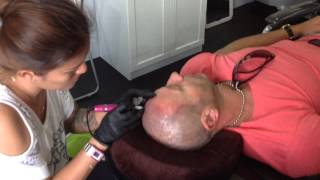 micro scalp pigmentation in Phuket