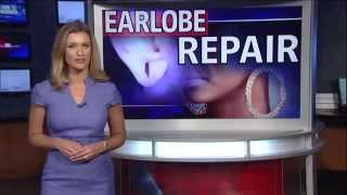 Dr. Etai Funk is a double board certified facial plastic surgeon who discusses earlobe repair for torn earlobes due to heavy earrings or loops. Torn earlobe repair is a straightforward procedure performed under local anesthesia in the office. Ears may be repierced in 6-8 weeks after the procedure.