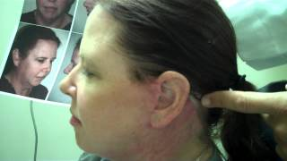 Dr. Epstein – 6 Weeks Post-Op for Full Facelift
