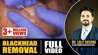 BLACKHEAD REMOVAL FULL VIDEO