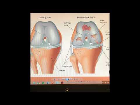 A térd artrózisának kezelése és táplálása