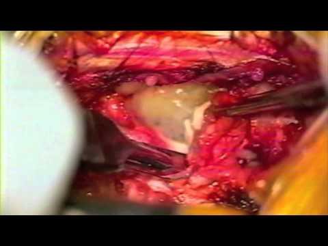 Fluido emorragica nellarticolazione del ginocchio