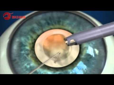 Клиники лазерной коррекции зрения в сочи