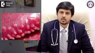 How to treat Pearly Penile Papules? - Dr. Sanjay Panicker