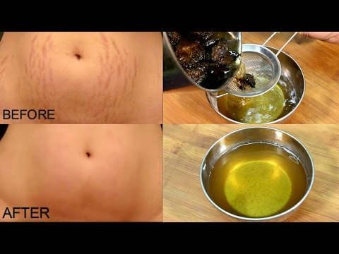 Video Get Rid Of Stretch Marks In 30 Days/ Stretch Marks Removal *Simple Beauty Secrets*