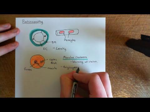 Eine gesunde Dosis von Humaninsulin spritzen