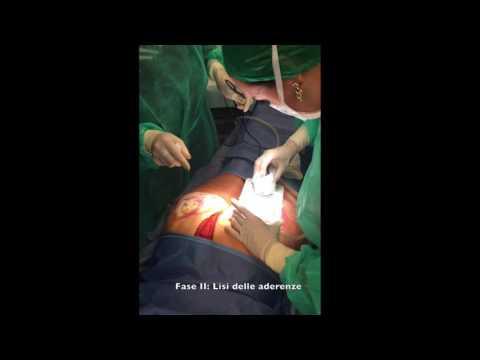 Violazione della pressione arteriosa fisiopatologia