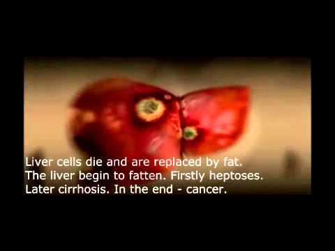 Diabetas, periferinė edema