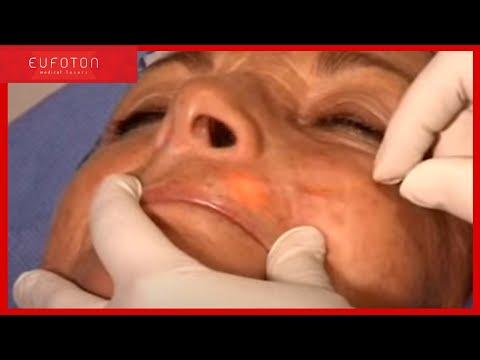 Thrombophlebitis เฉียบพลันของคลินิกขา