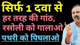 ganth ka ilaj hindi me - 免费在线视频最佳电影电视节目 - Viveos Net