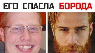 Как жизнь толстяка изменилась сразу после бороды?