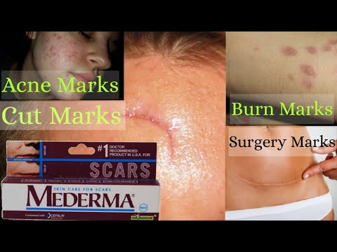 Mederma Cream Review And Uses In Hindi | How to Remove Surgery Scars, Burn Scars, Cut Marks, Acne