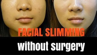 Facial slimming - how it works!