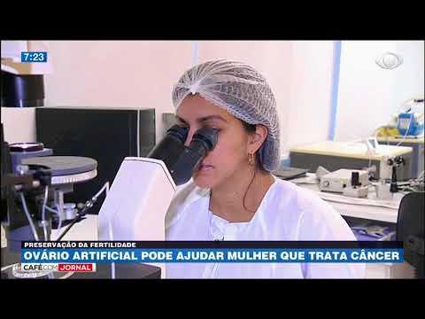 Ovário artificial pode ajudar mulher que trata câncer