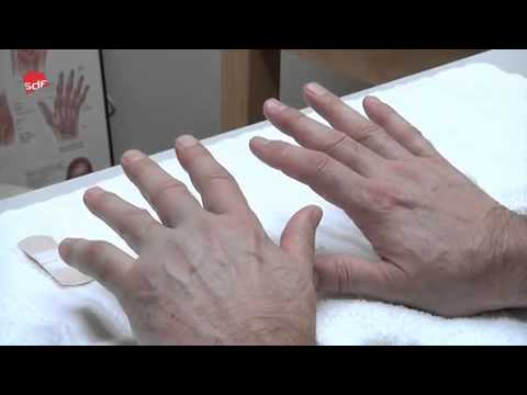 Verstauchung der Kniemuskulatur Symptome