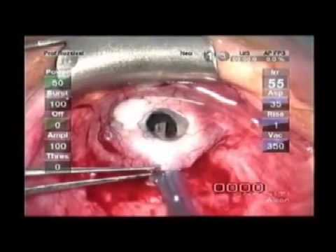A kareprost befolyásolja a látást