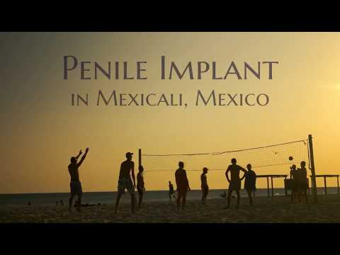 Advanced Penile Implant in Mexicali, Mexico